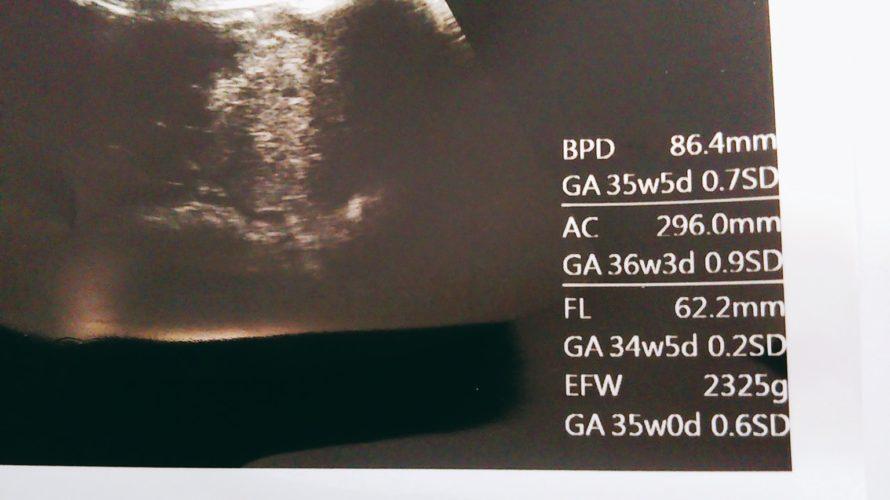 34週の妊婦健診