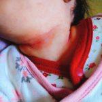 赤ちゃんの首の下や脇の下が赤い!これに気を付けたら直りました。